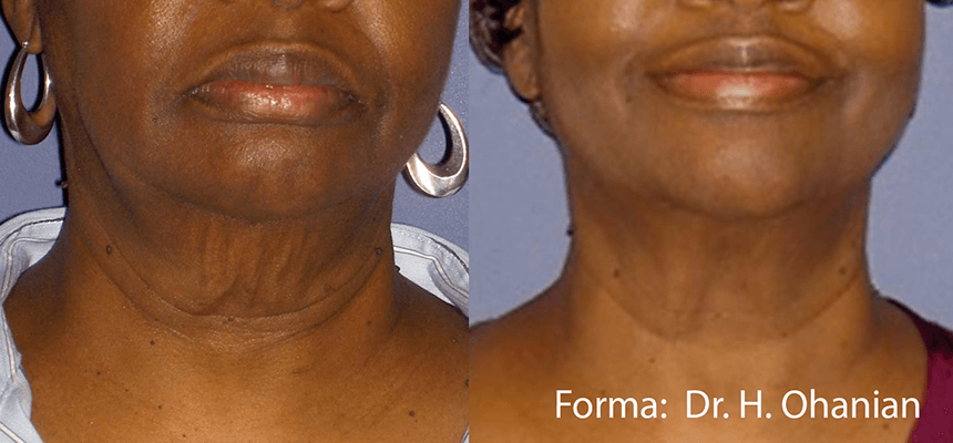 Wellness Services Brookfield WI Forma Before and After